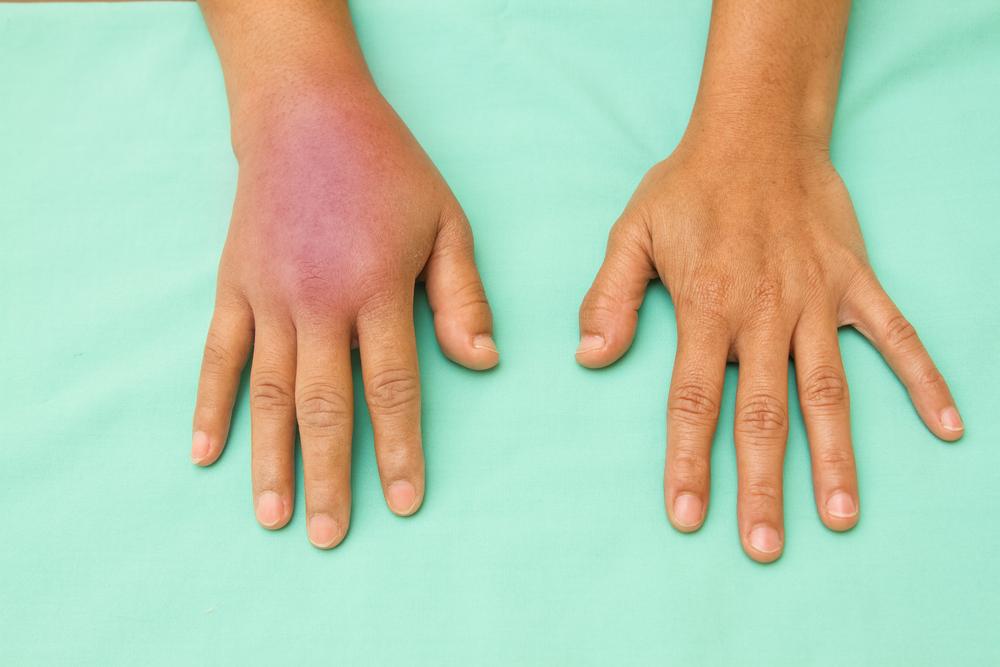 tissue necrotizing fasciitis