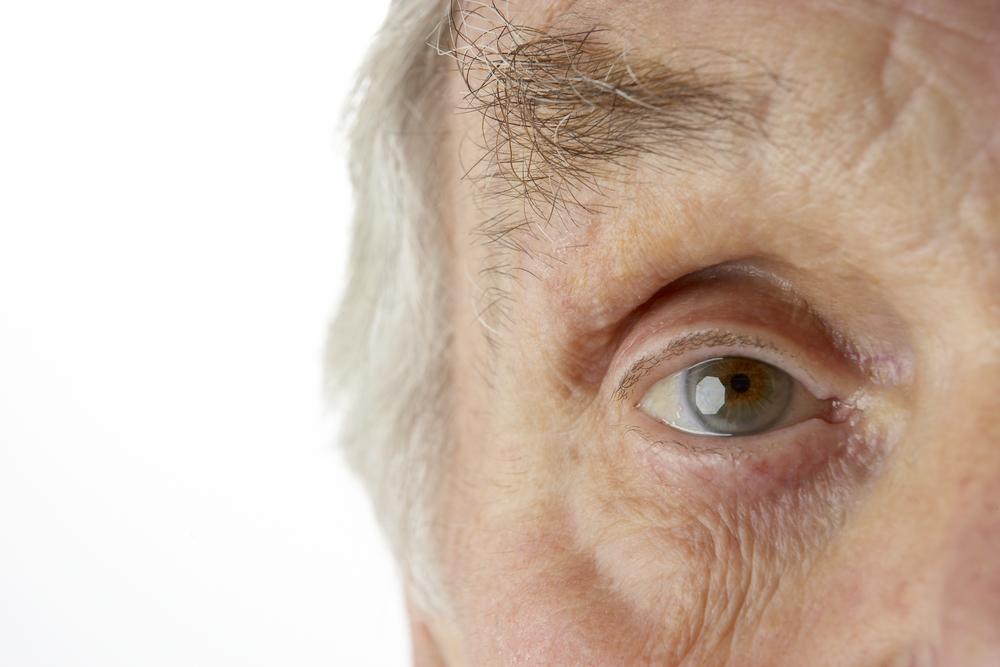 cloudy vision cataract