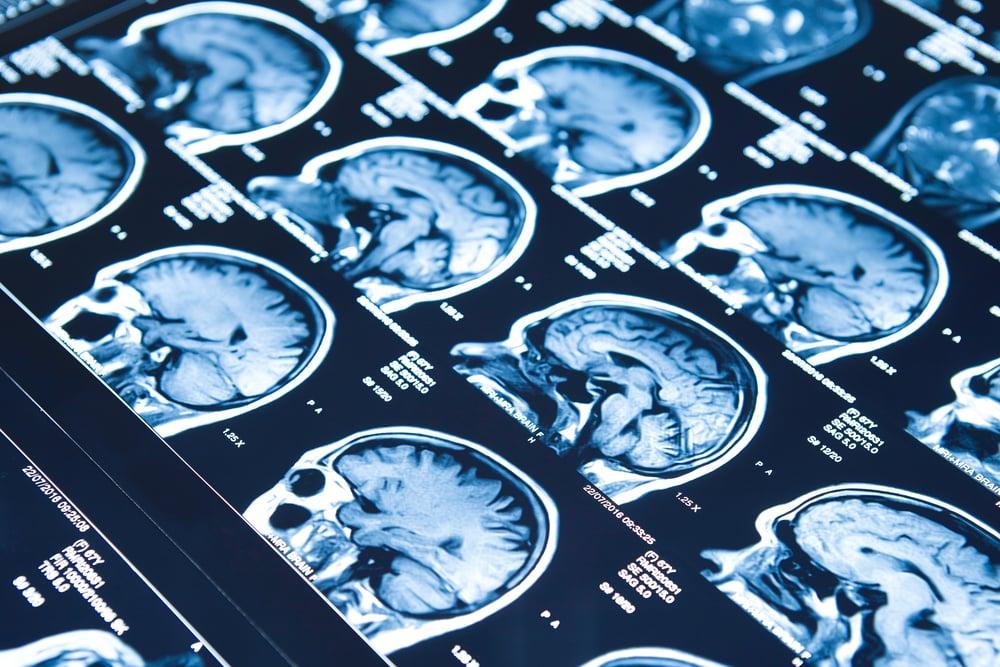 epilepsy brain diseases