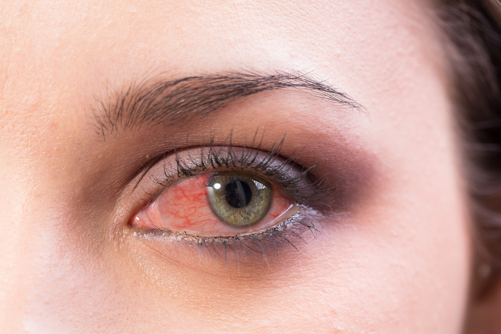 red eye poor vision