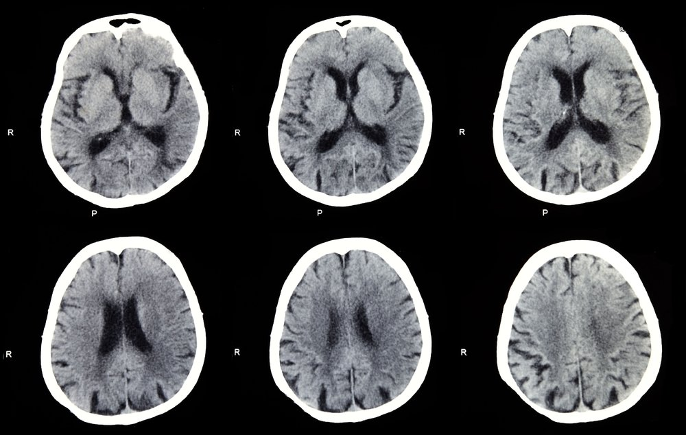 stroke brain diseases