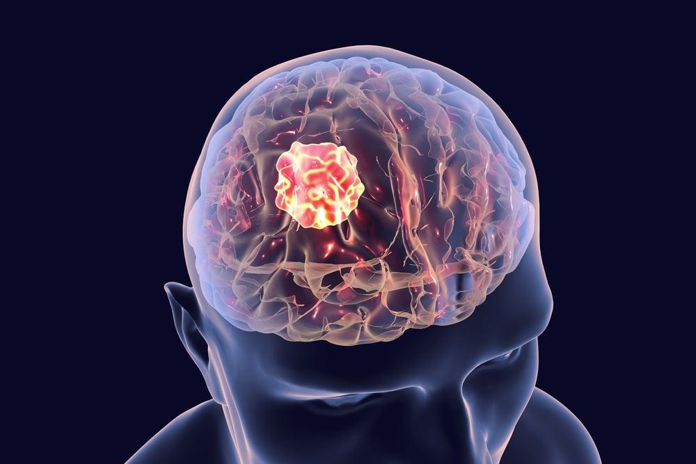 brain tumor brain diseases