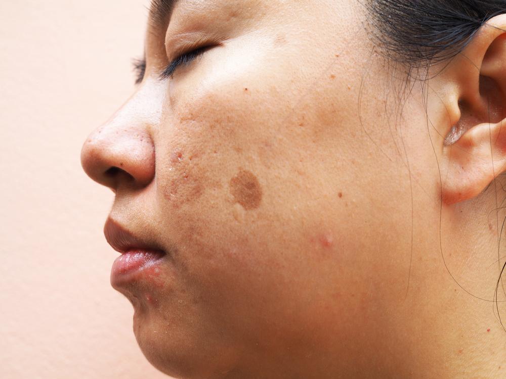 Melasma skin health