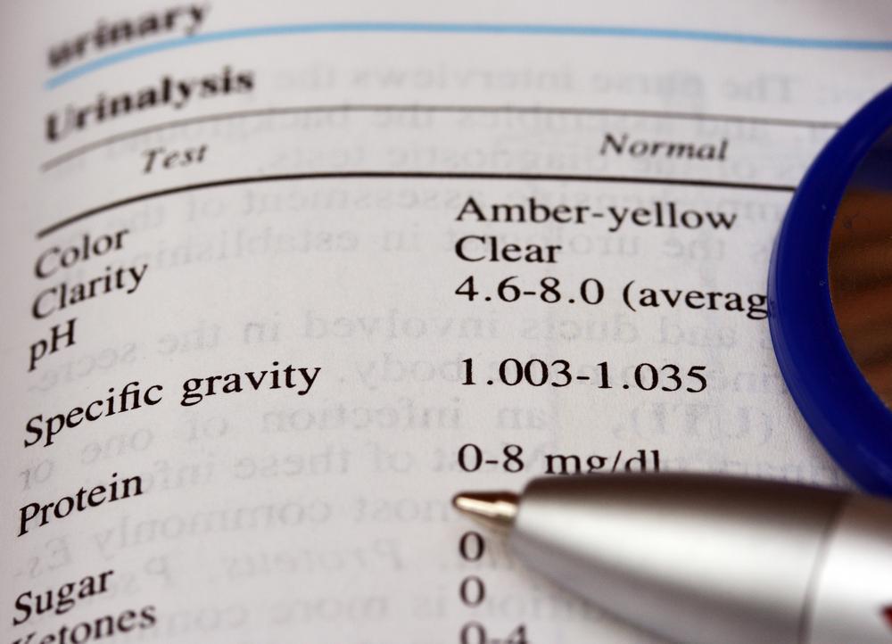 often urine specific