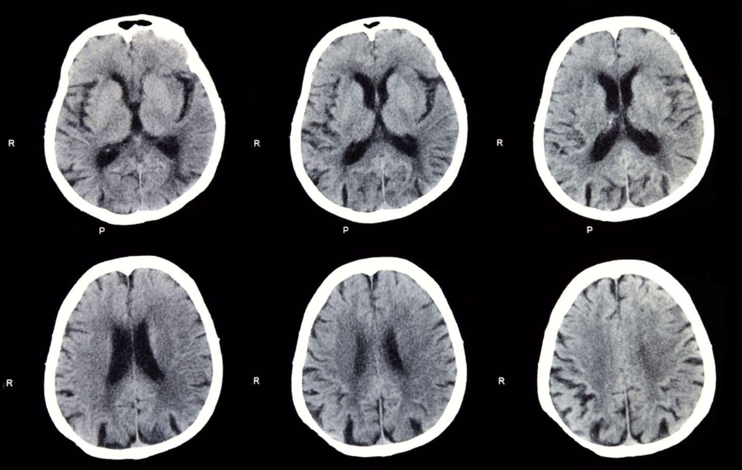 10 Common Brain Diseases - Facty Health