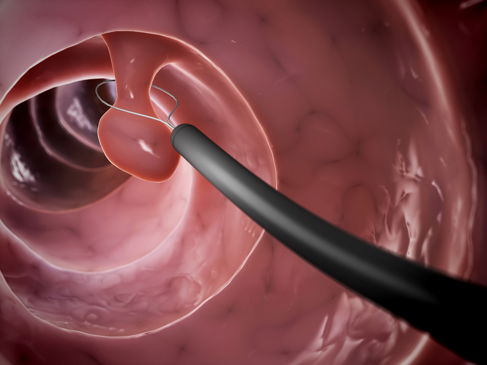 surgery colon polyp