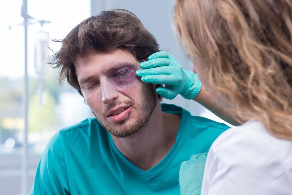 injury red eyes