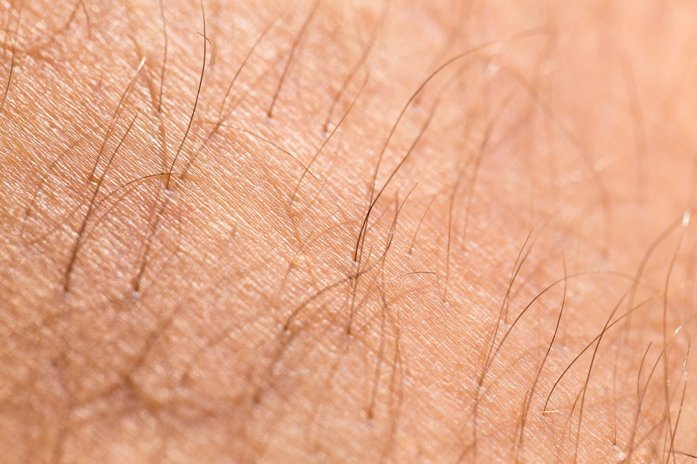 body hair Adrenal cancer