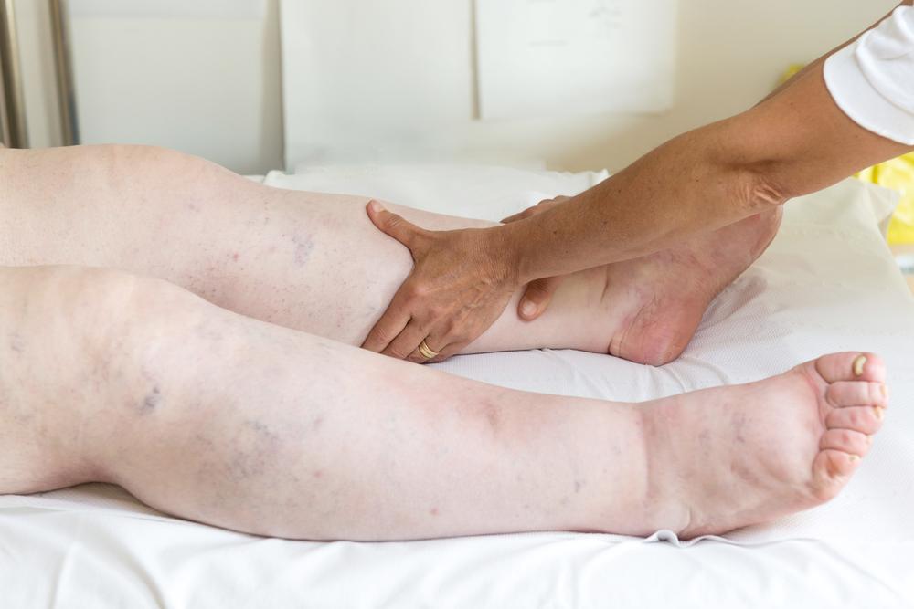 swelling Acute Renal Failure