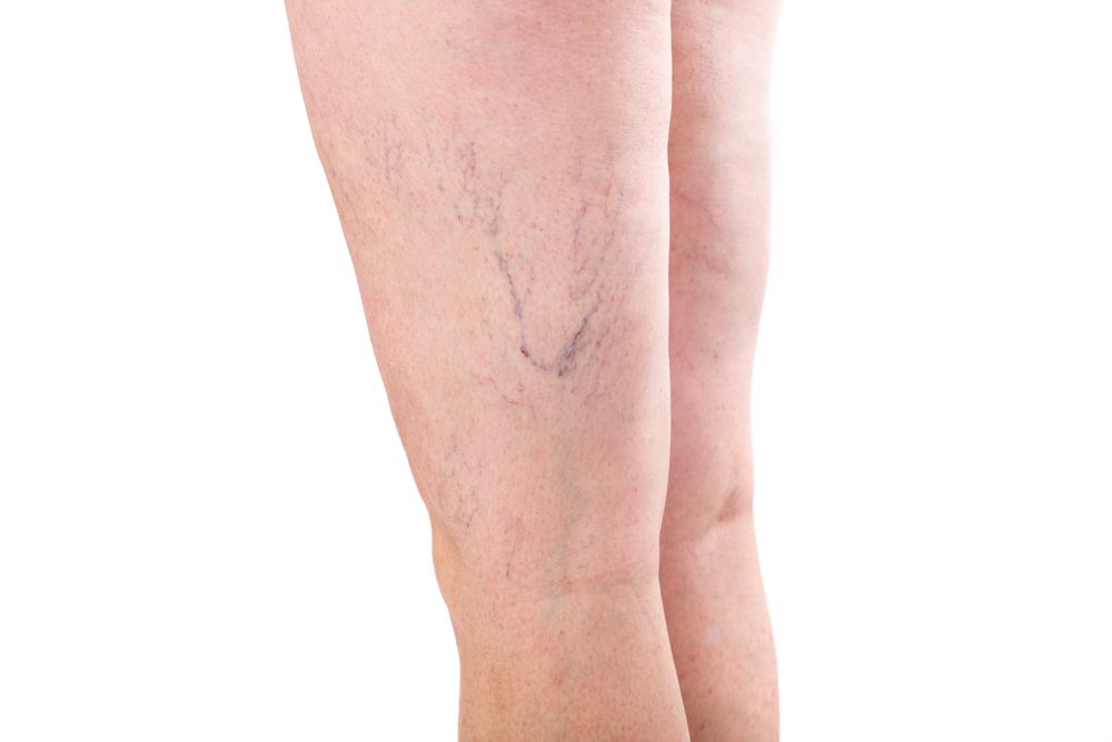 massage varicose veins
