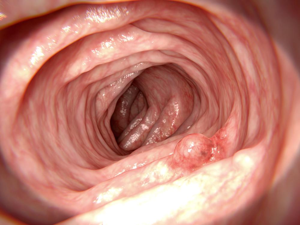 problems colon polyp