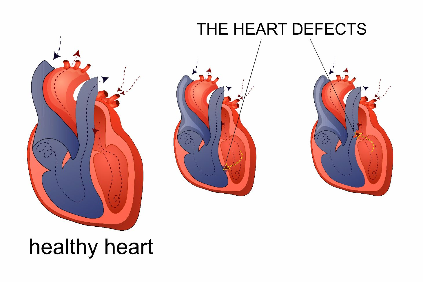 heart abnormalities Pulmonary Hypertension