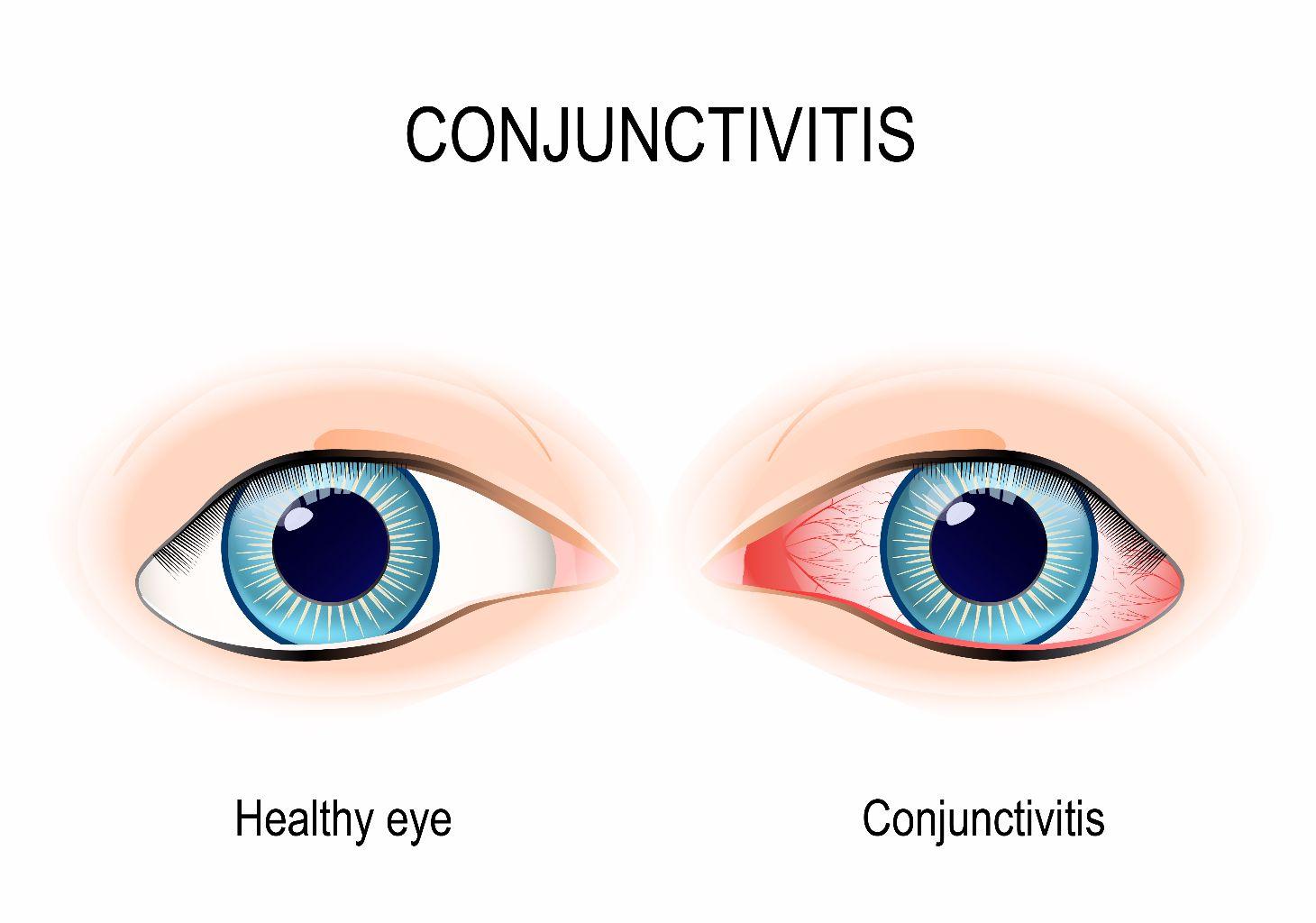red eyes conjunctivitis
