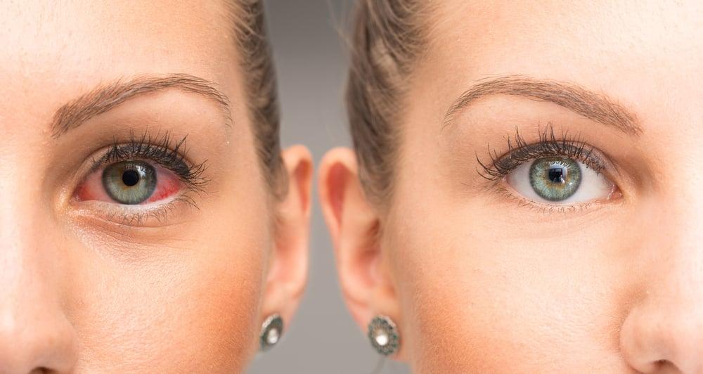 eyes ehlers-danlos