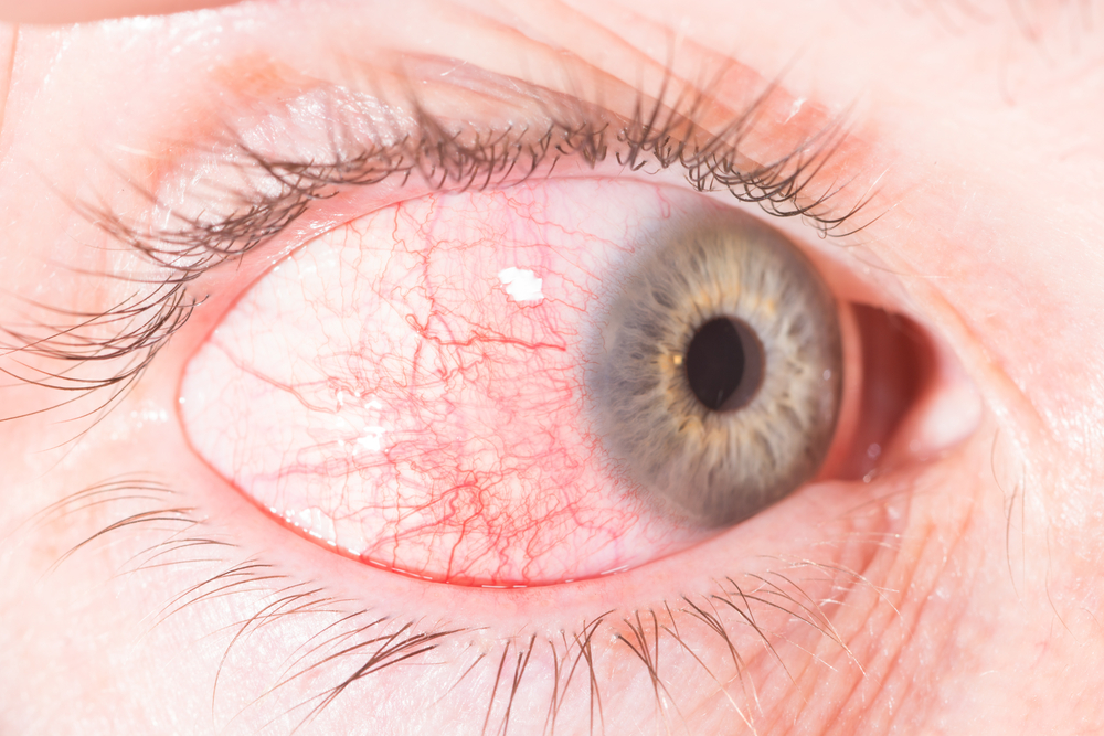 antibiotics red eyes