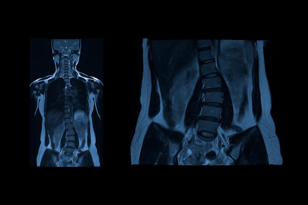 symptoms Scoliosis