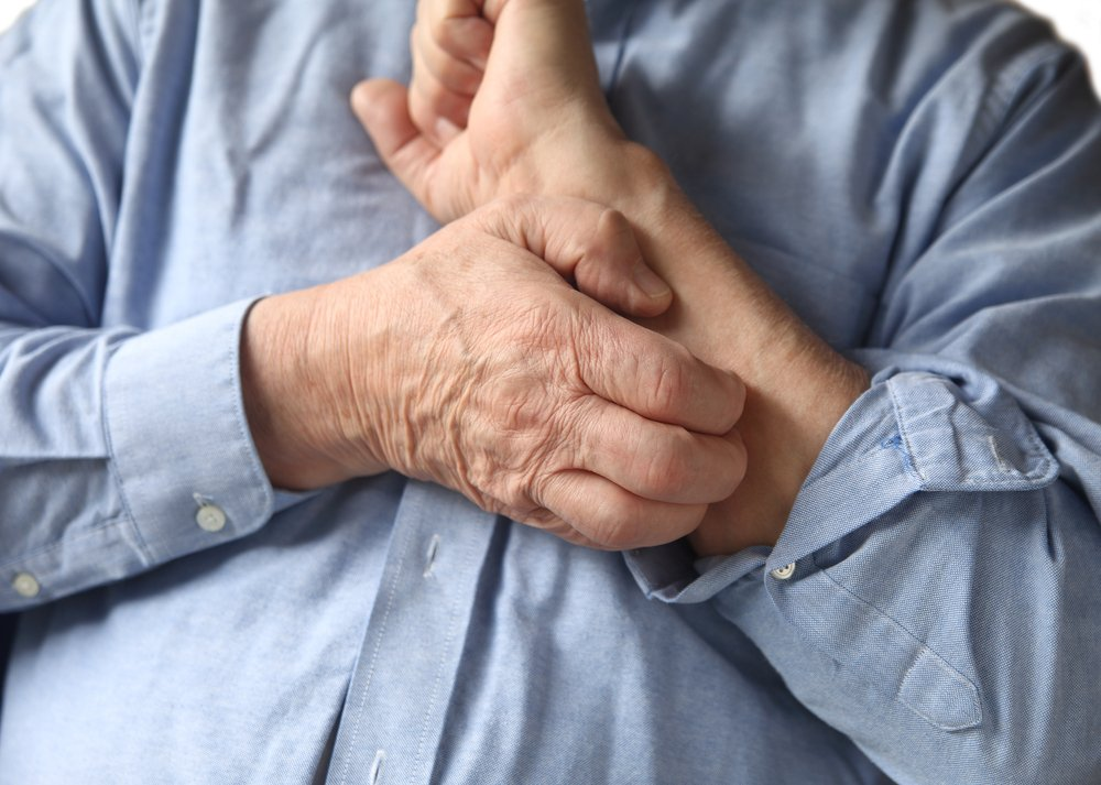 itching histamine intolerance