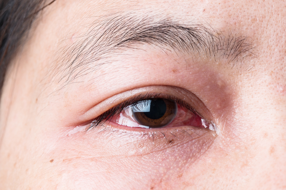 glaucoma red eyes
