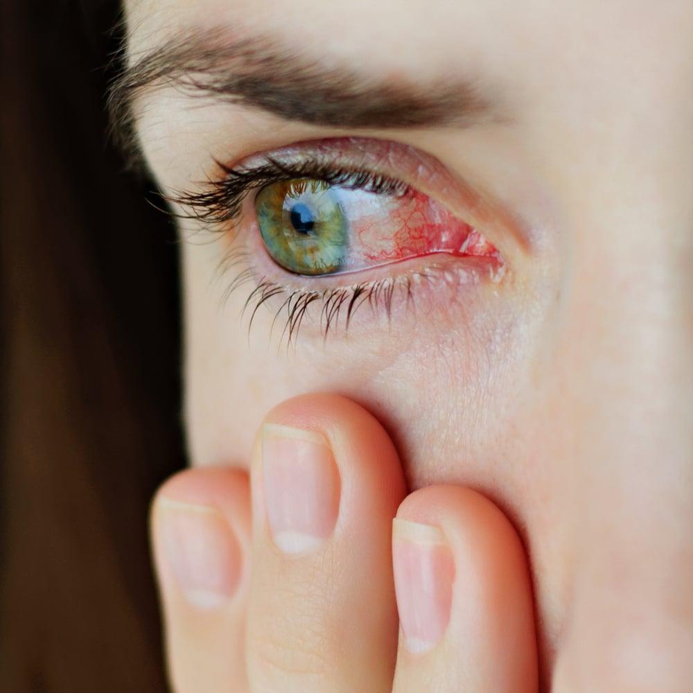 hemorrhage red eyes