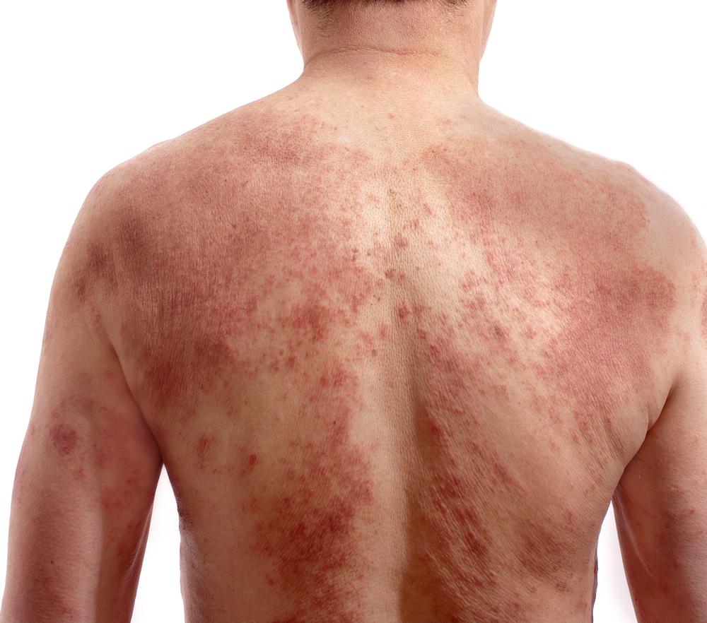 skin reactions Sulfa