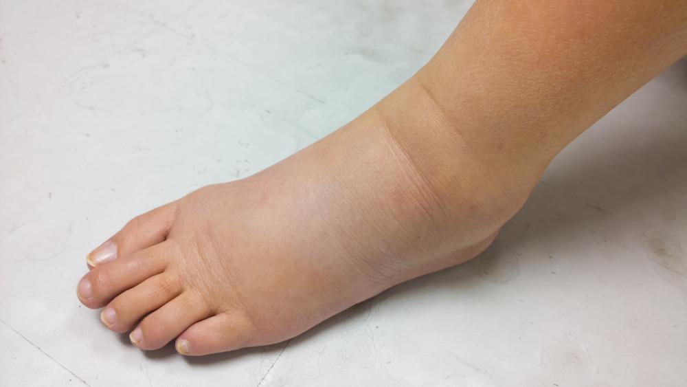 lymphedema skin