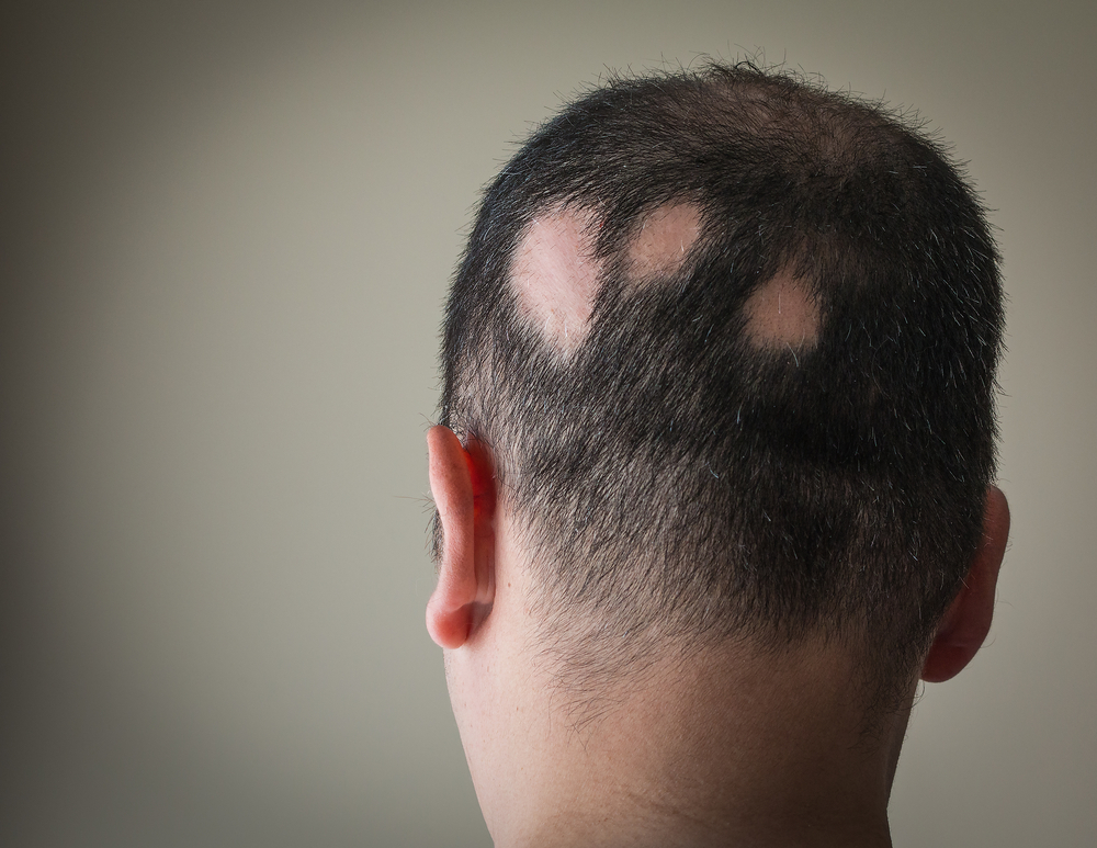 hair Alopecia Areata