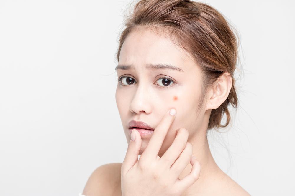acne Premenstrual Syndrome