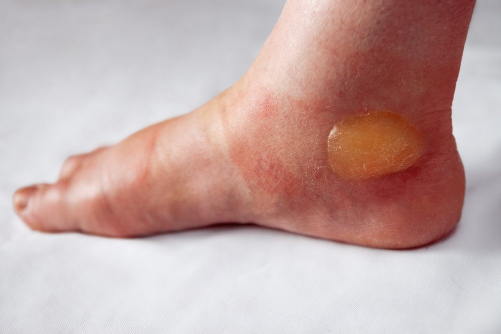 blisters lymphedema