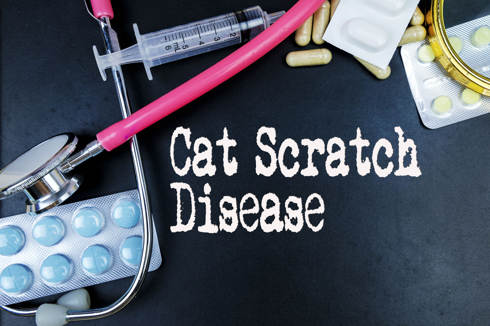 lymph nodes cat-scratch