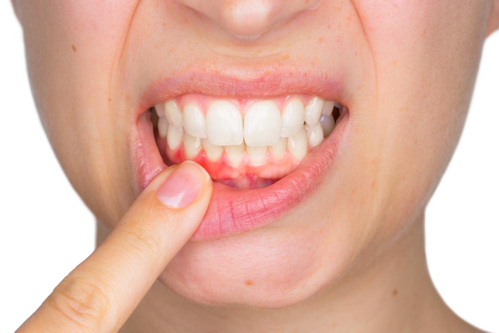 oral benefits salt