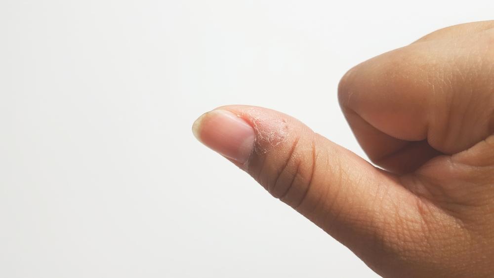 paronychia fingers