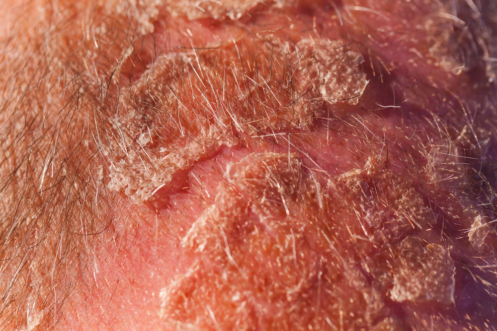 What is Seborrheic Dermatitis? Symptoms and Treatments