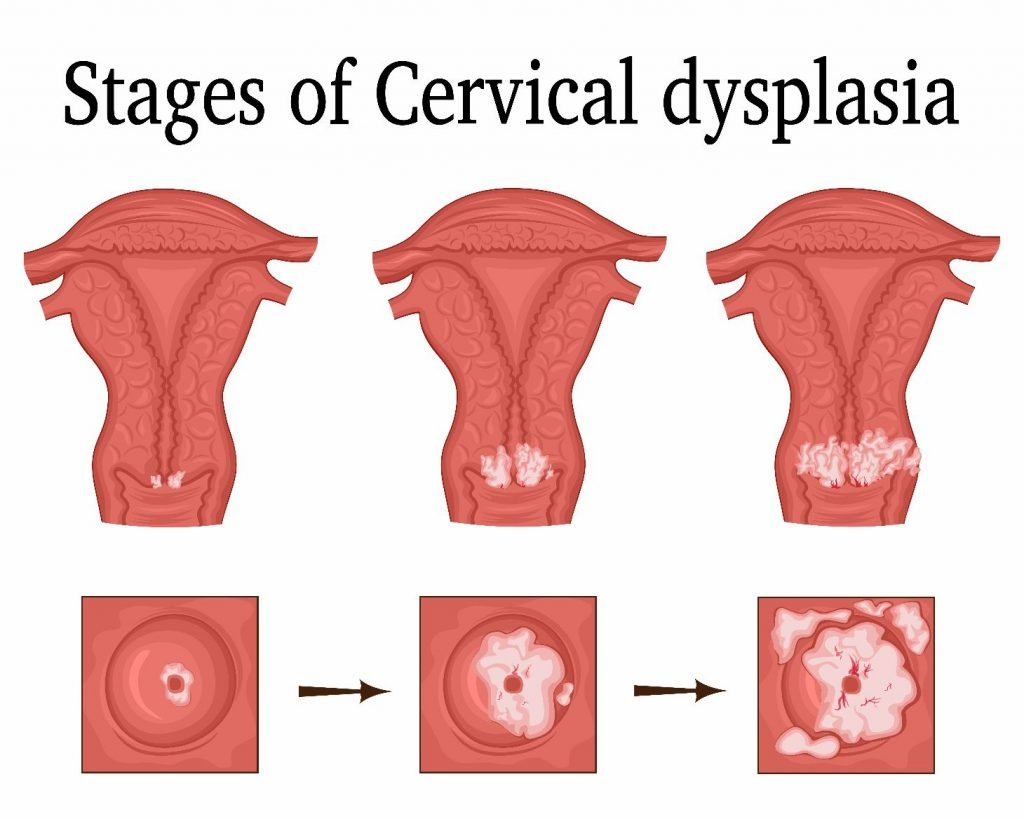stages Cervical Dysplasia