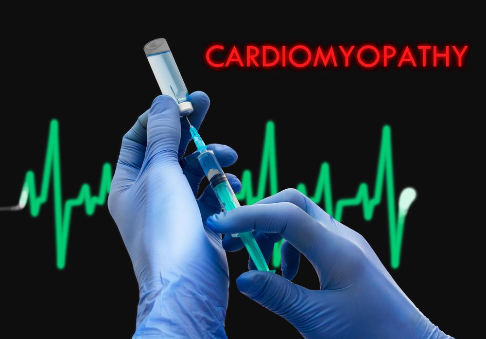 surgery Cardiomyopathy