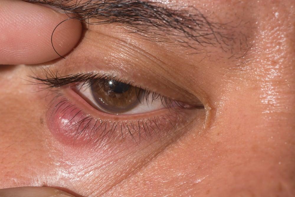 inflammation chalazia