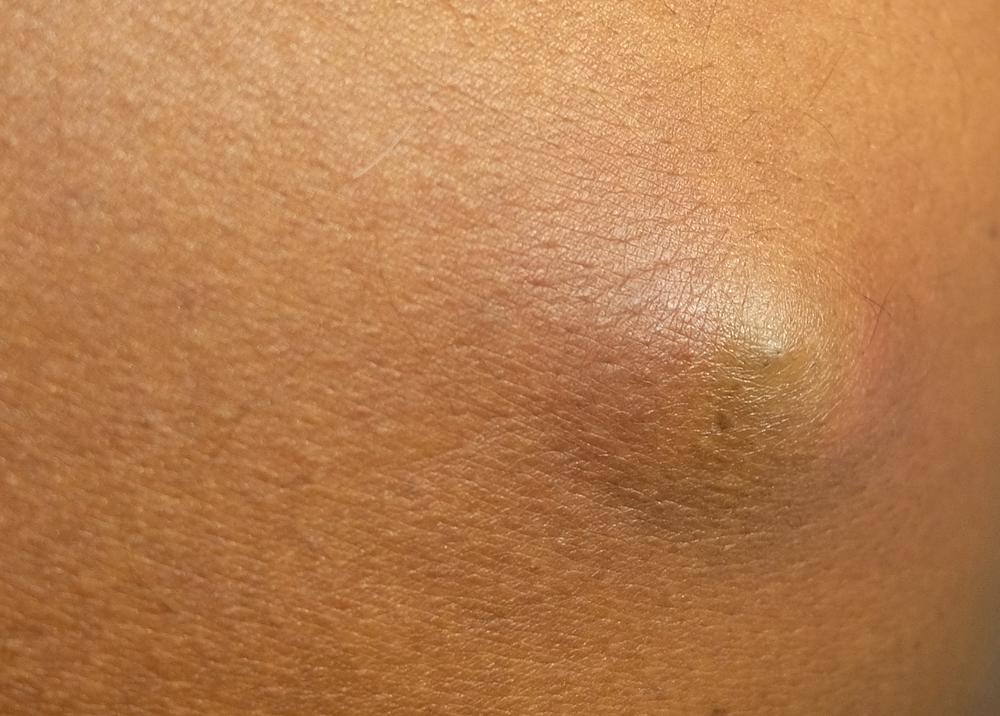 Sebaceous cysts size