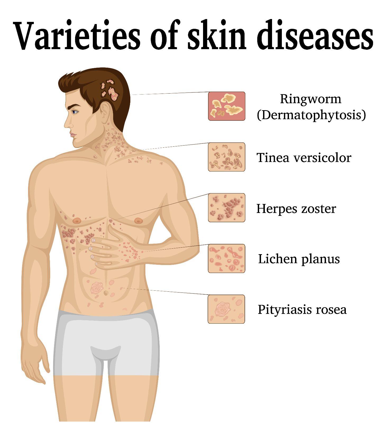 bumps Pityriasis