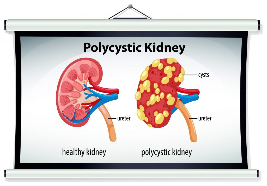 Contributing Cause: Polycystic Kidney Disease