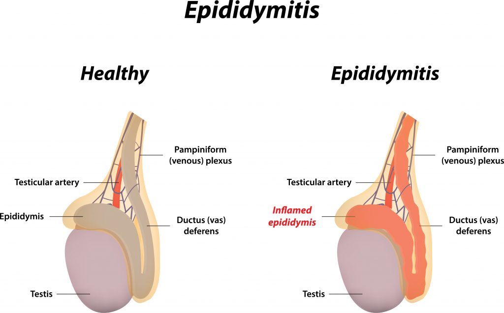 Diagnosis of an Epididymis Cyst