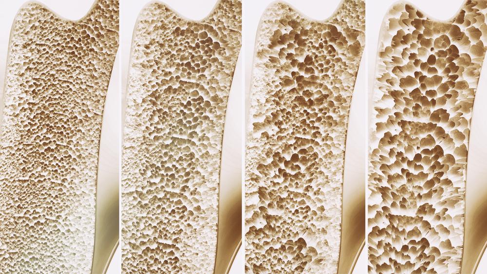 Osteoporosis Alfalfa sprouts