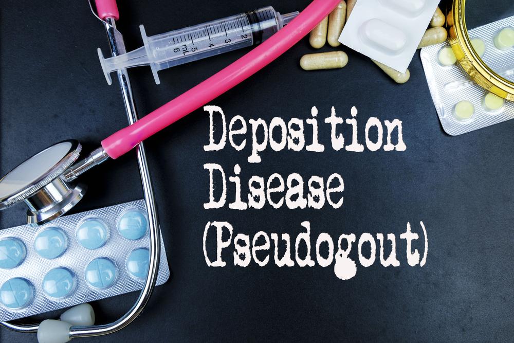 Pseudogout Diagnosis Pseudogout