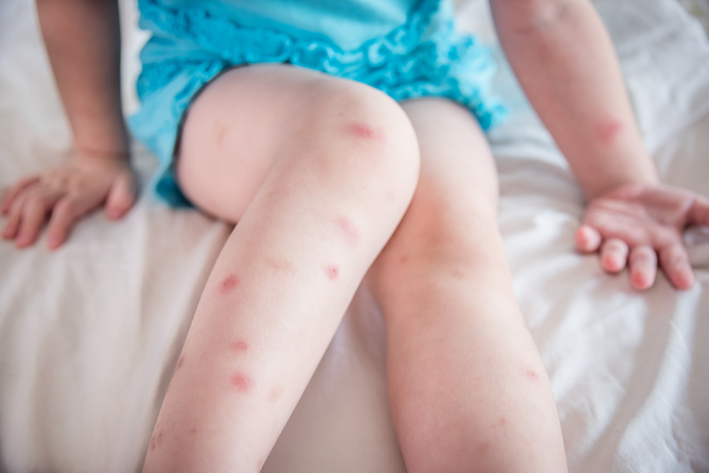 Soothe Bug Bites, Poison Ivy and Other Skin Irritations