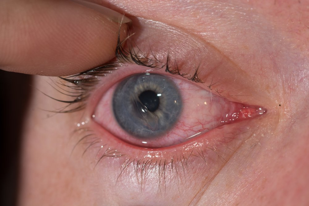 Treatment for corneal abrasions