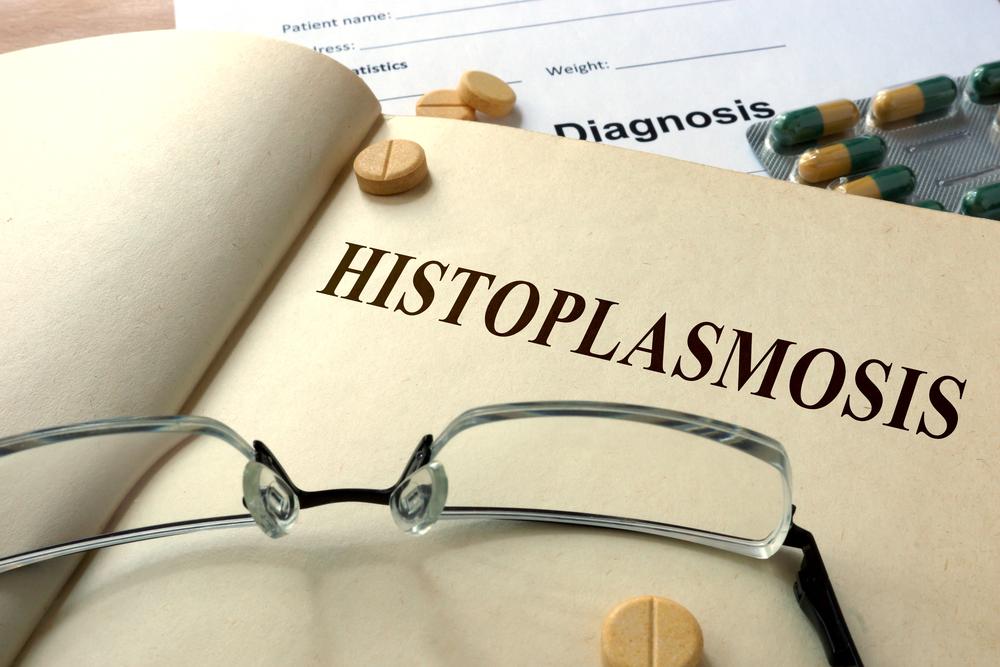 respiratory Histoplasmosis