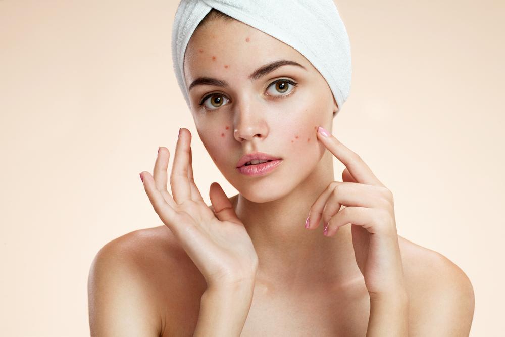 acne skincare Vanilla extract