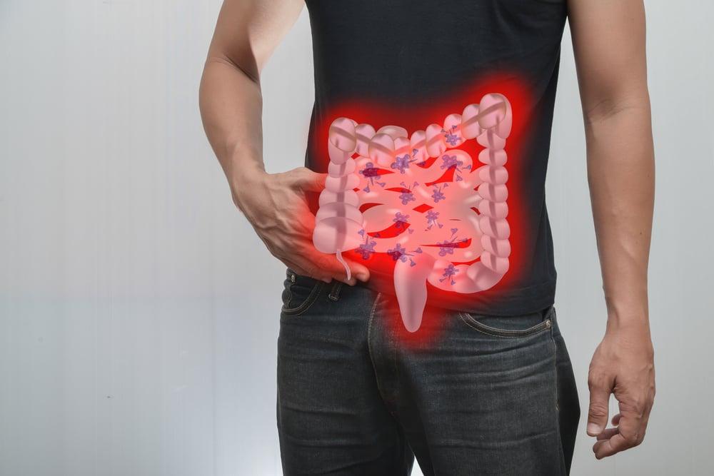 Gastroinstestestines