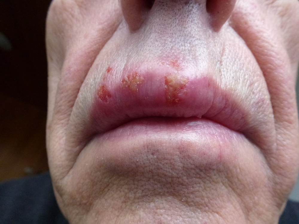 How do you get Herpes 1 or HSV 1?