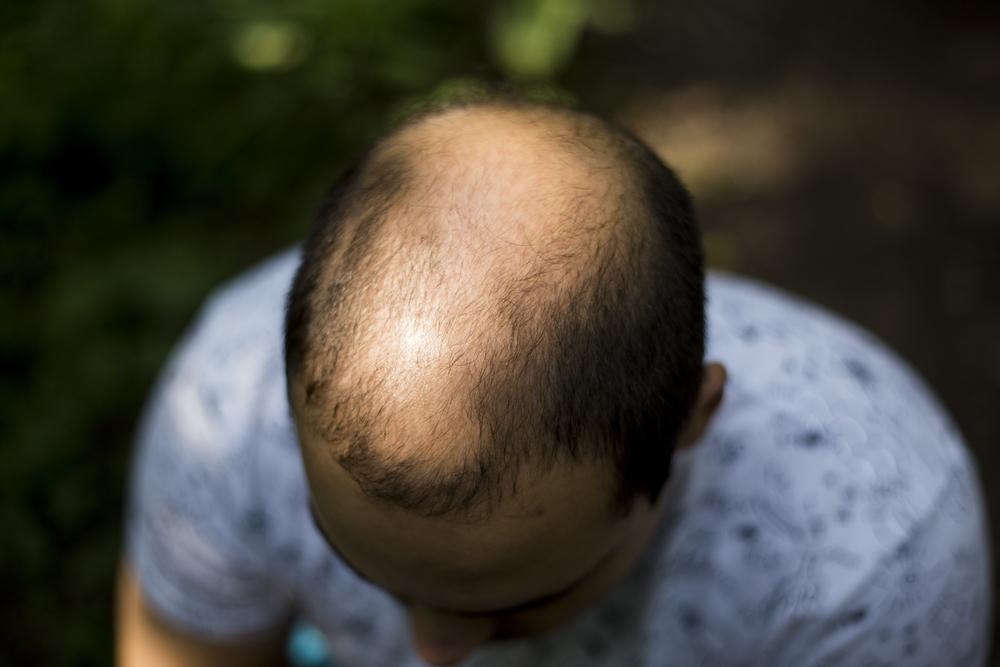 Improves Hair Health