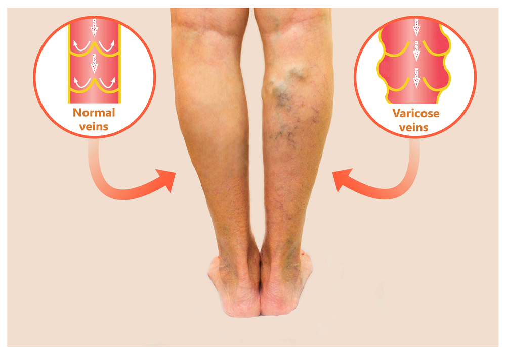 Reduce varicose veins