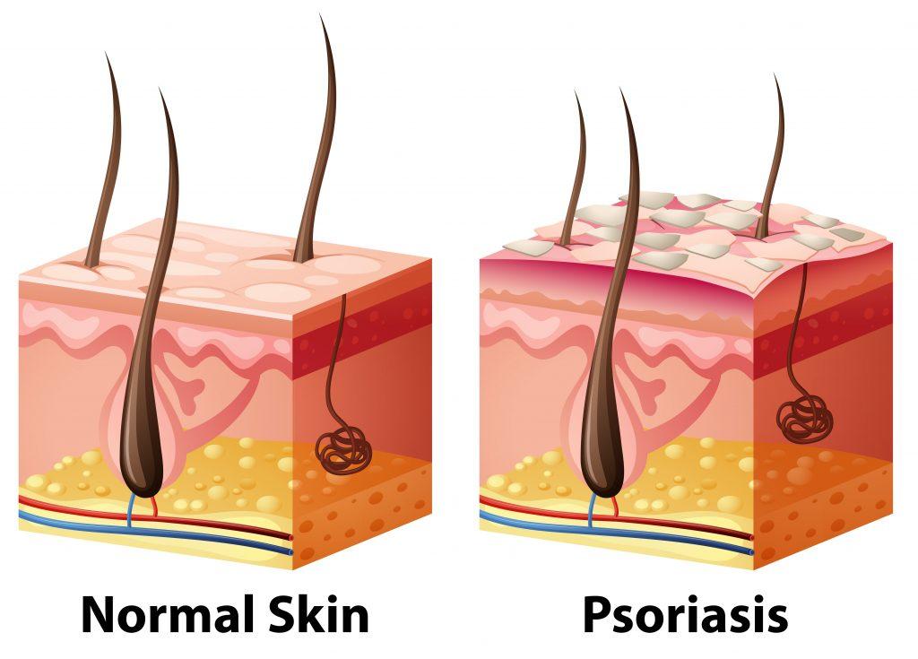 Treat Psoriasis